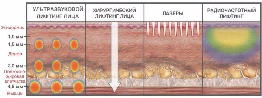 механизм действия ультразвукового лифтинга лица