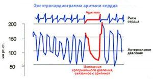Нарушение ритма сердца на ЭКГ