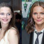 до и после пластики Лиза Боярская
