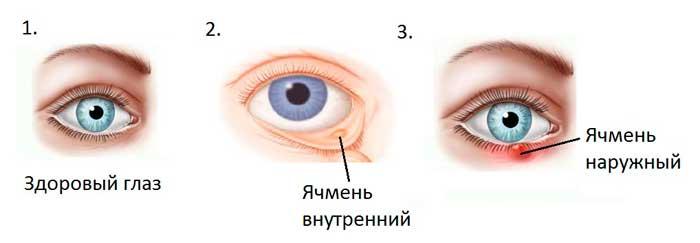 Мазь от ячменя на глазу