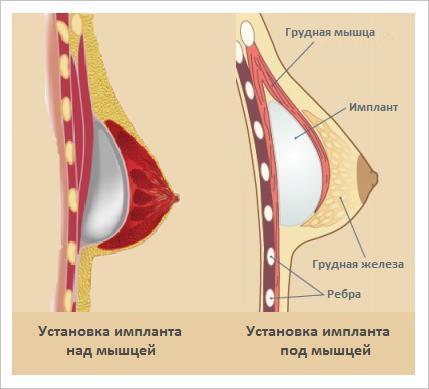 как устанавливают импланты