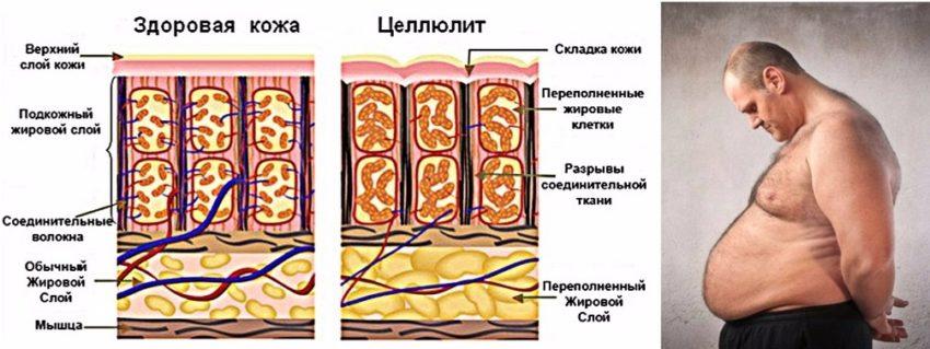 симптомы целлюлита