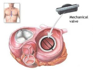 Замена двустворчатого аортального клапана
