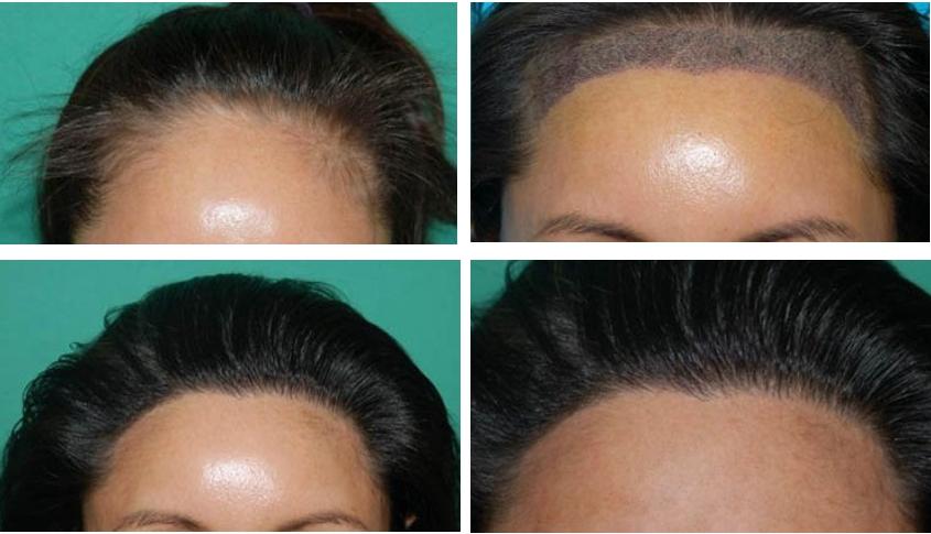 food to enhance hair growth