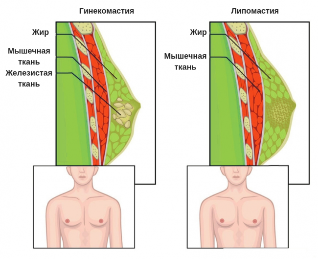 разница между липомастией и гинекомастией