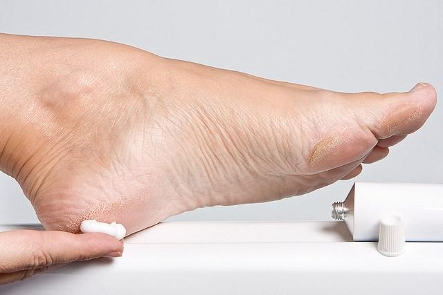 сухая кожа на ступнях