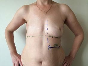 виды реконструкции молочной железы