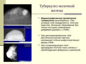 маммографические проявления заболевания