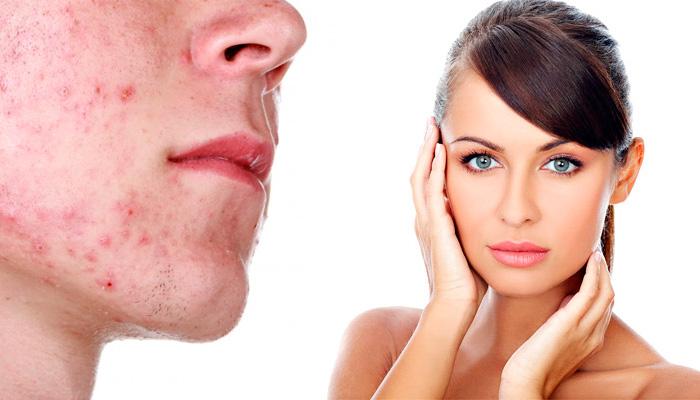 Кремы и мази против рубцов и шрамов: убираем следы прыщей с лица
