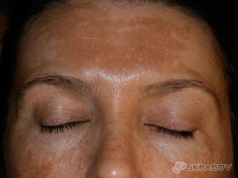 Как избавиться от пятен на лице коричневого цвета: 12 полезных компонентов 13-2-1