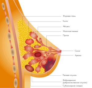 Картинка болезней груди