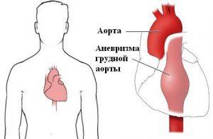 Аневризма аорты грудного отдела