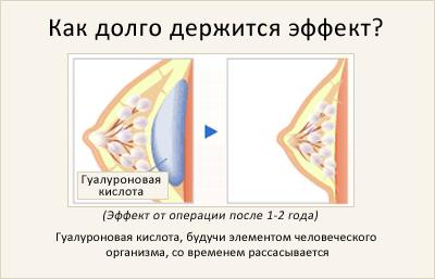 введение гиалуроновой кислоты: продолжительность результата