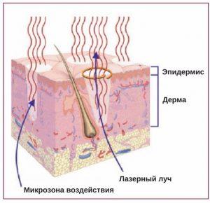 механизм действия лазера фраксель
