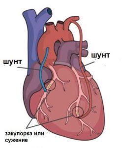 Аортокоронарное шунтирование сердца