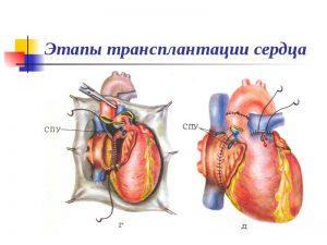 Этапы пересадки сердца