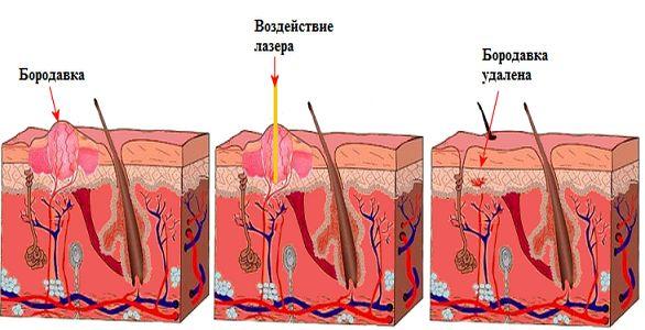 преимущества лазера при удалении бородавки