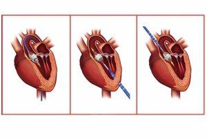 Хирургическое лечение стеноза аортального клапана