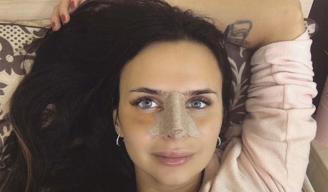 пластика носа виктории романец