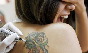 варианты выведения татуировок