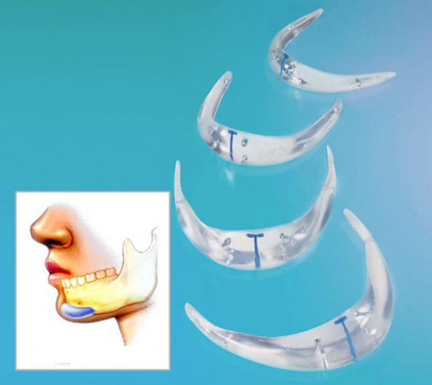 импланты подбородка