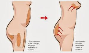 Места пересадки жира