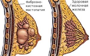 Различие здоровой и больной груди
