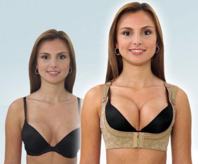 Бюстгальтер для коррекции формы груди