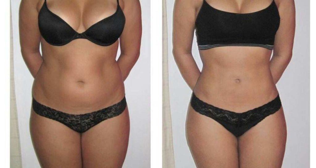 армопластика до и после