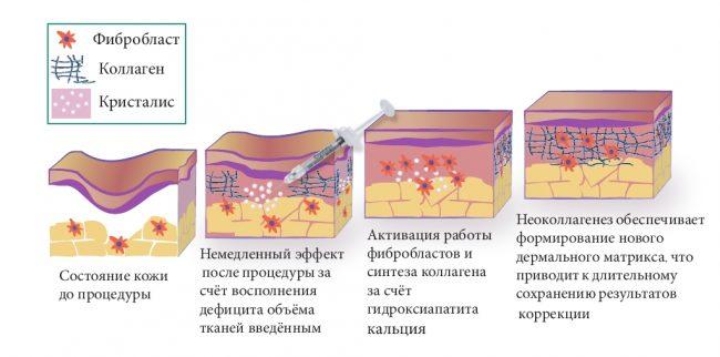 Гидроксиапатит кальция в косметологии