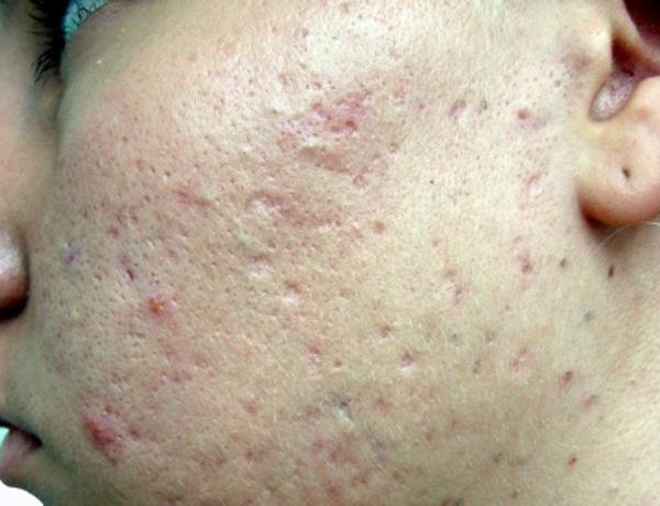 Шрамы после прыщей на лице