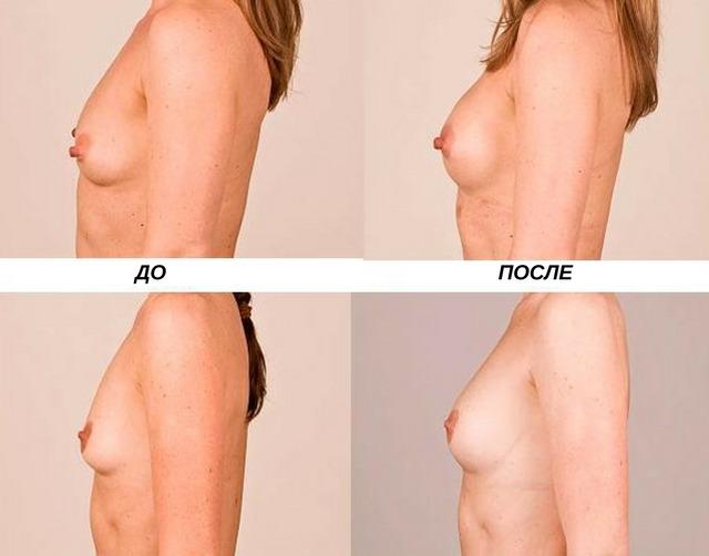 введение гиалуроновой кислоты для увеличения груди