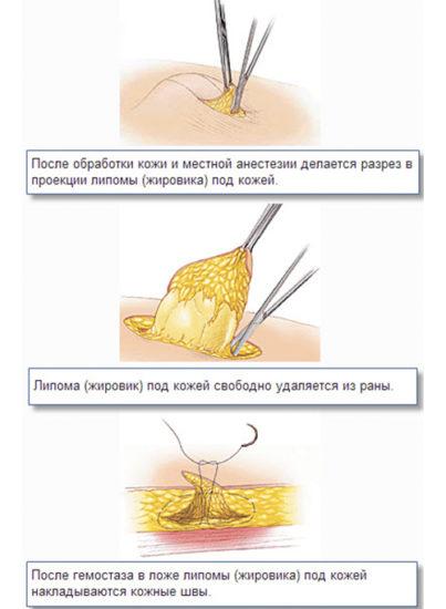 хирургическое удаление липомы