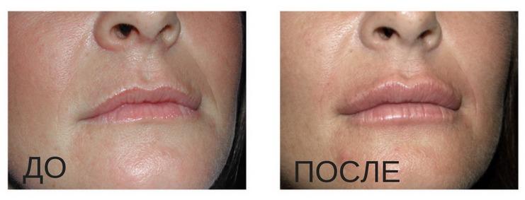 процедура по увеличению губ липофилинг до и после