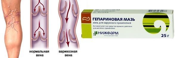 Гепариновая мазь от варикоза