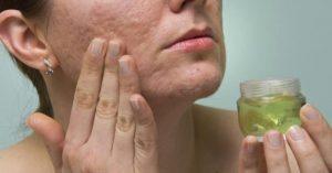 лечение рубцов после акне