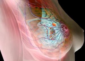 Доброкачественные образования в груди