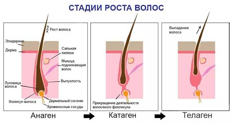 лечение алопеции у женщин