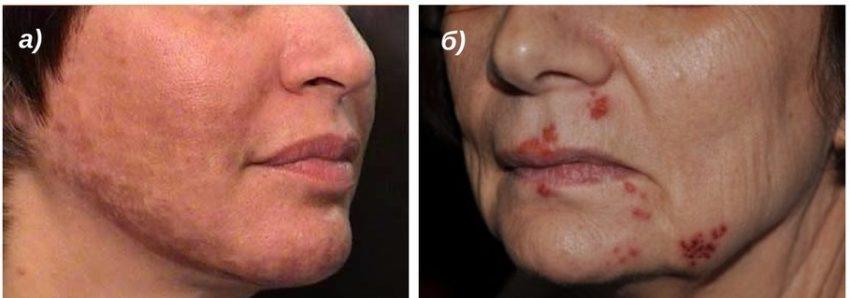 побочные реакции кожи на лазерный пилинг