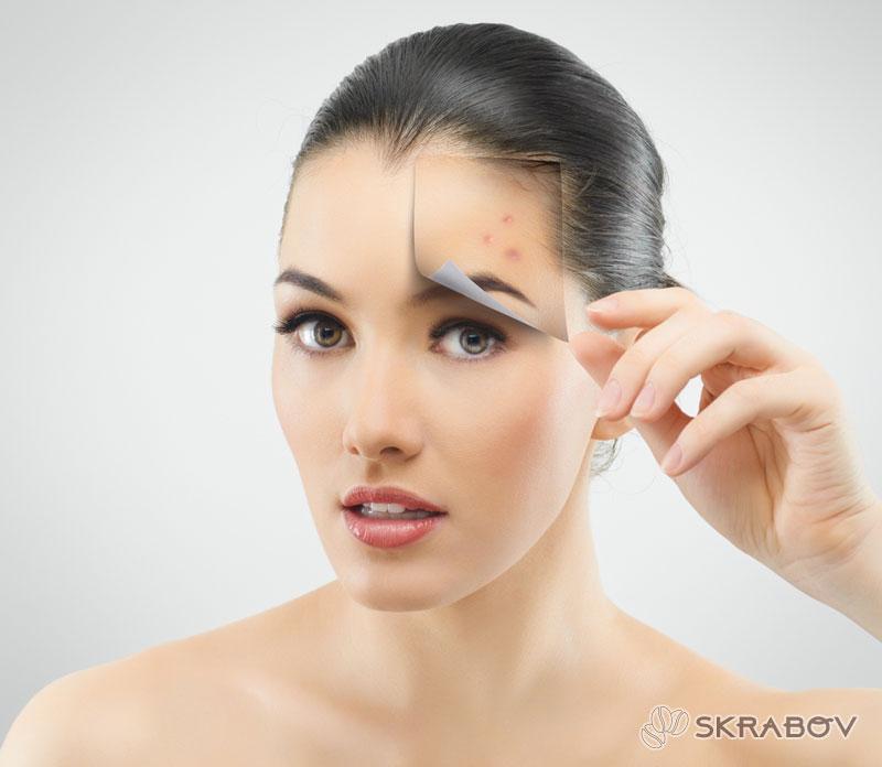 Очищение кожи лица от прыщей: проверенные методики 18-4
