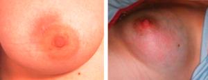 Здоровая и больная грудь