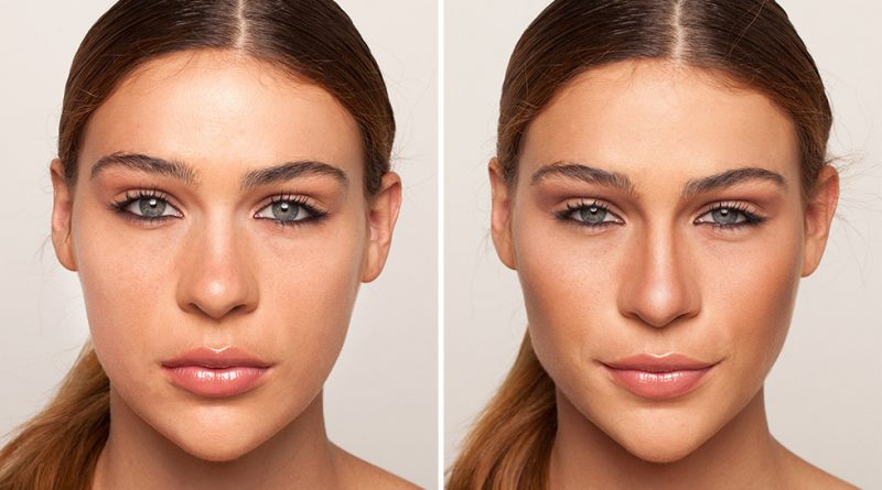до и после коррекции широкого носа