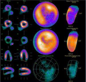 Результат сцинтиграфии миокарда