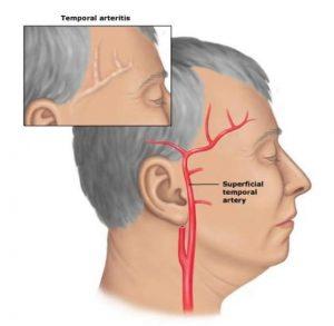 Височный артериит