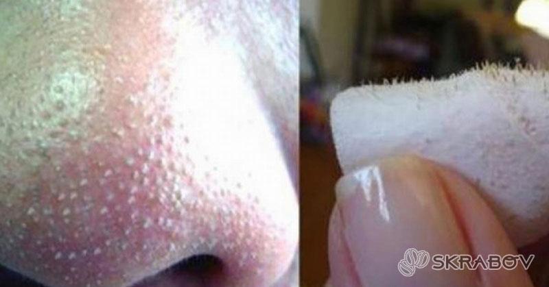 Как выдавить черные точки на носу: пошаговая инструкция 7-2