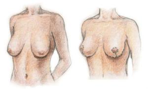 Результат мастопексии