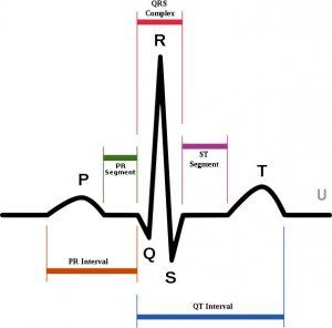 Результаты диагностики на ЭКГ