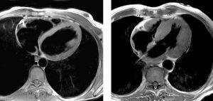 Результаты обследования МРТ сердца