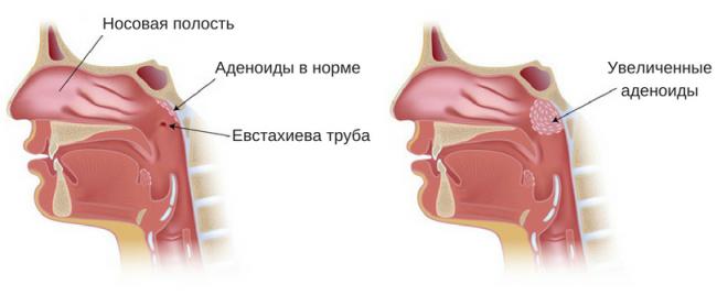 Коррекция ринолалии