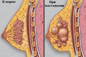 Больная и здоровая грудь